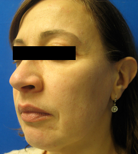 Patient # 20277 After Photo # 6