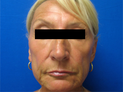Patient # 11582 After Photo # 2