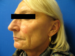Patient # 11582 Before Photo # 5