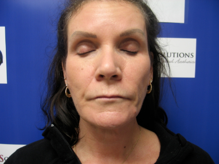 Patient # 27223 After Photo # 2